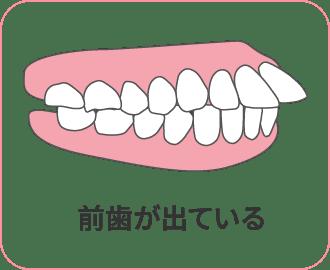 前歯が出ている