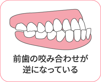前歯の咬み合わせが逆になっている