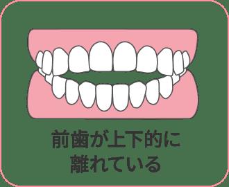 前歯が上下的に離れている